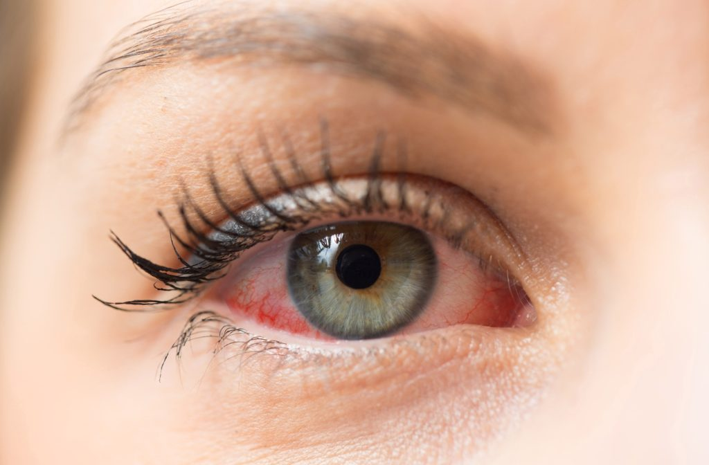 A close up of a person suffering from dry eye
